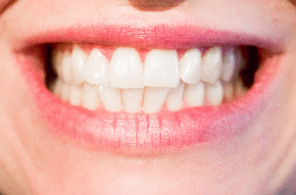 How to Have a Perfect Smile in 6 Months