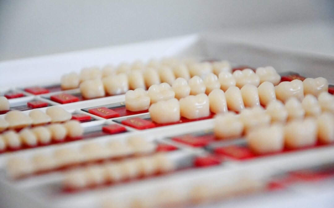 5 Reasons Why You Should Get Dental Implants